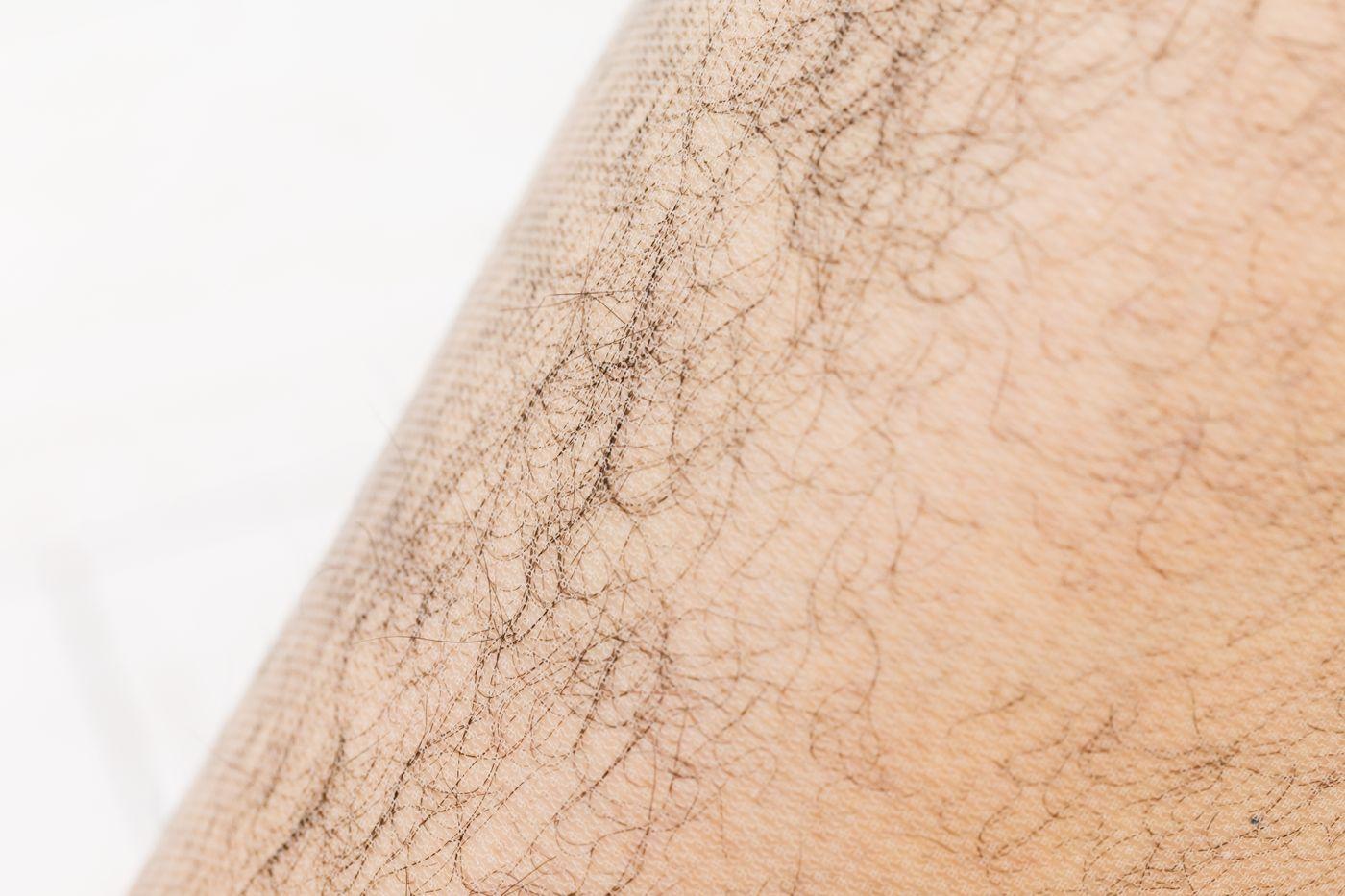 ストッキングを飛び出すトップオブすね毛の写真