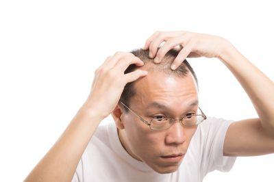 M字ハゲを気にする男性の写真